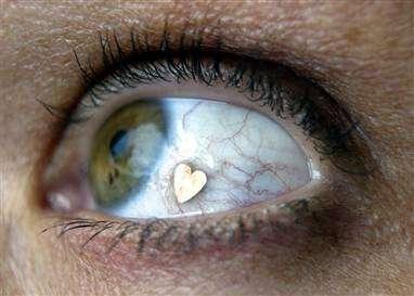 eyeball piercing